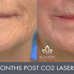 CO2 laser treatment - before and after image 03 - Academy Face & Body Perth