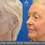 CO2 laser treatment - before and after image 04 - Academy Face & Body Perth
