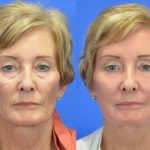 CO2 laser treatment - before and after image 05 - Academy Face & Body Perth