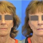 CO2 laser treatment - before and after image 06 - Academy Face & Body Perth