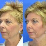 CO2 laser treatment - before and after image 08 - Academy Face & Body Perth