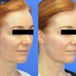 Fractional DOT Laser - before and after image 01 - Academy Face And Body