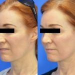 DOT Laser before and after - image 02 - Academy Face And Body