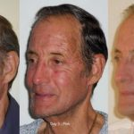 Fractional DOT Laser - before and after image 04 - Academy Face And Body