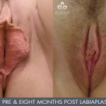labiaplasty before and after - image 003