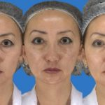 Liquid Facelift - Before and After - Academy Face And Body - Perth