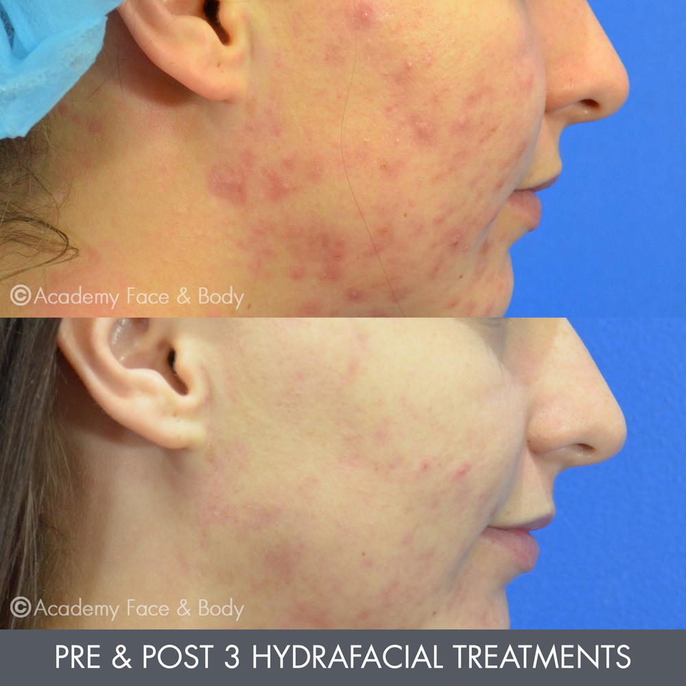 Microdermabrasion or HydraFacial Perth | Academy Face & Body