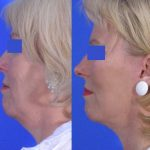 Mini Facelift (S-Lift) - before and after image 01 - Academy Face And Body Perth