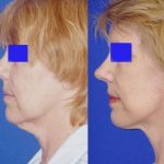 Mini Facelift (S-Lift) - before and after image 03 - Academy Face And Body Perth
