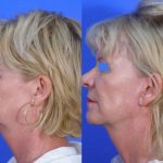 Mini Facelift (S-Lift) - before and after 44 - Academy Face And Body Perth