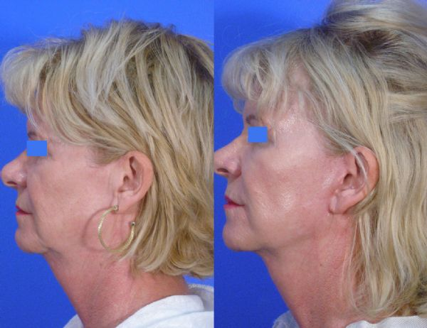 Mini Facelift or S-Lift Surgery Perth | Academy Face & Body