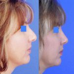 Nose Job - Rhinoplasty - Before and After 03 - Academy Face And Body