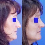 Nose Job - Rhinoplasty - Before and After 04 - Academy Face And Body