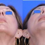 Nose Job - Rhinoplasty - Before and After 05 - Academy Face And Body