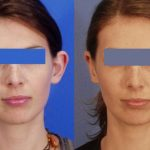 otoplasty - ear reshaping - before and after image 01 - Academy Face & Body Perth