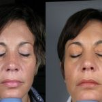PRP skin rejuvenation - before and after image 02 - Academy Face & Body Perth