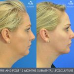 submental liposculpture before and after image 01 - Academy Face & Body Perth