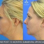 submental liposculpture before and after image 02 - Academy Face & Body Perth