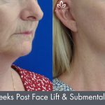 submental liposculpture before and after image 06 - Academy Face & Body Perth