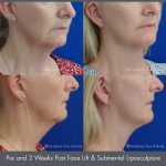 submental liposculpture before and after image 05 - Academy Face & Body Perth