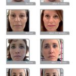 thread lift before and after images 001 - Academy Face & Body Perth