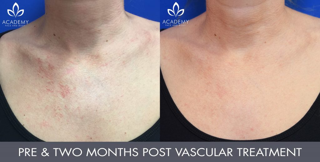 Vascular Laser Perth | Academy Face and Body