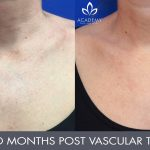 Vascular Laser Treatment - before and after - Academy Face And Body - Perth