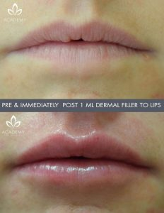 dermal fillers pre and post treatment images performed by Perth's leading medical team