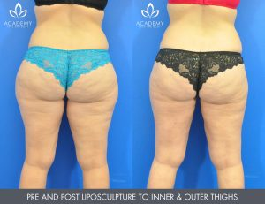 liposuction performed by Australian leading certified doctors.