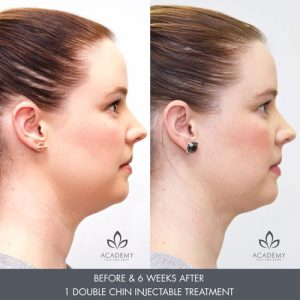 double chin removal before and after - before & 6 weeks after - 1 treatment - image 001