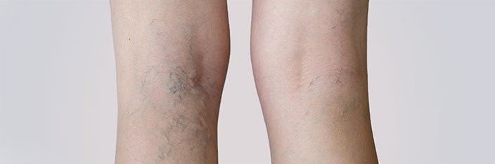 Vascular Laser Treatment - Academy Face And Body - Perth