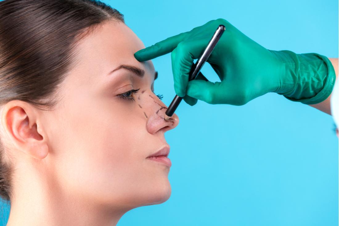 rhinoplasty benefits - blog image 01